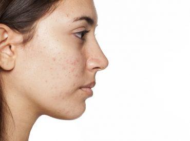 Właściwa pielęgnacja cery trądzikowej i łojotokowej to niezbędny element skutecznej kuracji antytrądzikowej. Kosmetyki przeznaczone do pielęgnacji problematycznej cery mają za zadanie wspomagać leczenie trądziku i łagodzić jego objawy. W wielu przypadkach dbanie o skórę za pomocą odpowiednio dobranych kosmetyków wystarczy, aby jej stan wyraźnie się poprawił. Niestety, jedno uniwersalne rozwiązanie nie istnieje: podczas gdy łagodne […]