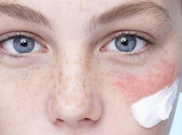 """Kosmetyki probiotyczne mnożą się ostatnimi czasy na sklepowych półkach. Co to takiego, czym różnią się od """"tradycyjnych"""" czy kosmetyki probiotyczne do twarzy i ciała są lepsze w działaniu od innych? Kto powinien po nie sięgać? Zapraszam na """"probiotyczną"""" opowieść. Kosmetyki probiotyczne – co to takiego? Ogólnie mówiąc – kosmetyki probiotyczne to specjalny rodzaj produktów, które […]"""