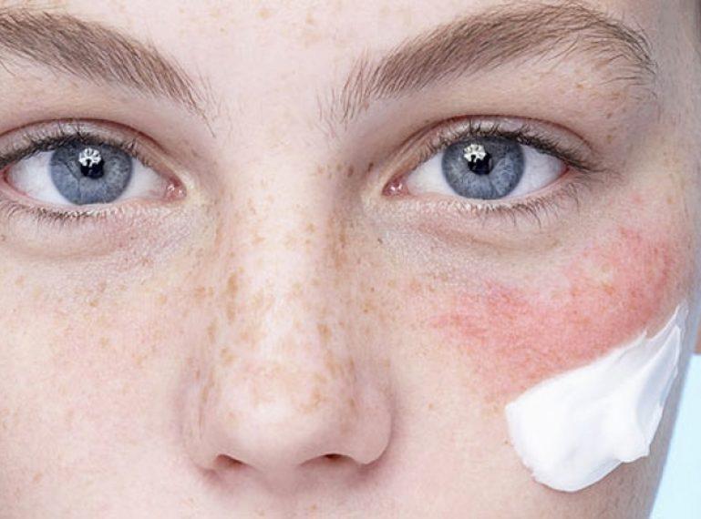 Kosmetyki – probiotyki. Dla kogo i jak działają? Warto spróbować?