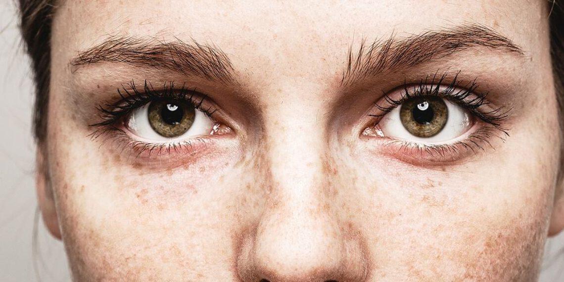 Moje sposoby na opadającą powiekę – makijaż, zabiegi