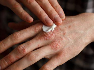 Niestety jestem jedną z tysięcy osób, które muszą zmagać się z AZS. To choroba skóry, która potrafi uprzykrzyć życie i utrudnić codzienne funkcjonowanie. Jeśli też cierpicie na atopowe zapalenie skóry, mam dla was coś specjalnego. Wpis o tym, jakie są skuteczne naturalne sposoby łagodzenia objawów AZS. Przetestowałam je na własnej skórze, a dziś opowiem o […]